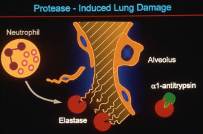 Protease - Induced Lung Damage